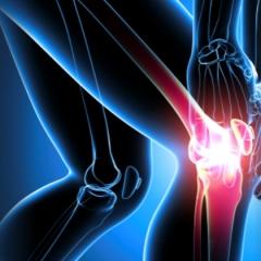 Nuova protesi per il ginocchio