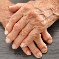 Malattie reumatiche e diagnosi precoce