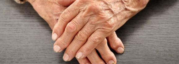 """Artrite Reumatoide: dalla SIR nuove conferme per la """"piccola"""" molecola che colpisce i """"responsabili"""" dell'infiammazione"""