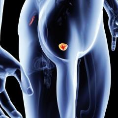 Urologia, dal 13 al 17 giugno 100 centri aperti