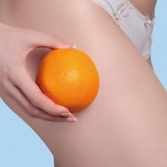 Cellulite, i consigli per evitarla