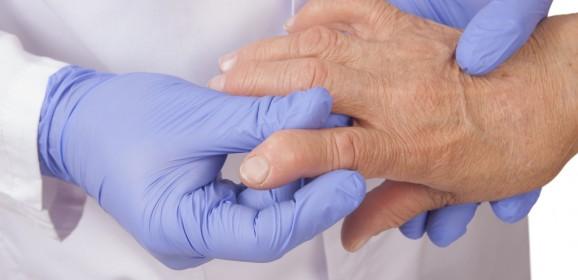 I bisogni insoddisfatti dei malati di artrite reumatoide