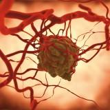Tumori rari, si punta a cure personalizzate