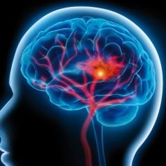 Alcool, cannabis, cocaina e oppiacei: il loro abuso fa aumentare i casi di ictus cerebrale tra i giovani