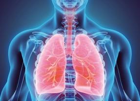 Fibrosi Polmonare Idiopatica, si può fare di più