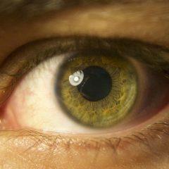 Nuovo traguardo per la chirurgia oftalmica italiana
