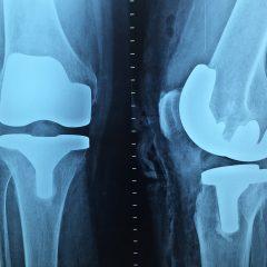 Le nuove frontiere dell'ortopedia