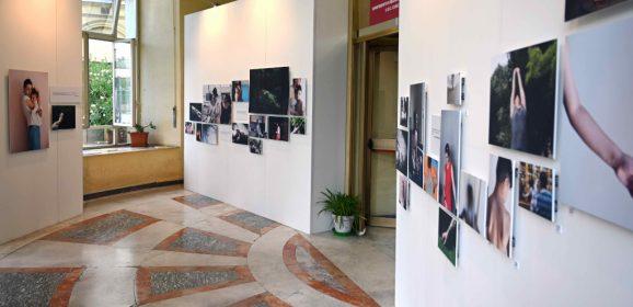 """Dermatite atopica: mostra fotografica per raccontare le """"vite atopiche"""""""