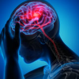 L'Emicrania cronica riconosciuta malattia sociale